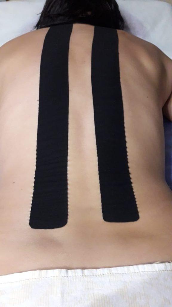 тейпирование спины